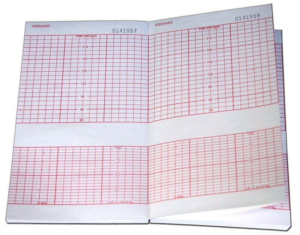 Giấy monitor sản khoa Corometrics AAO/CAO 4305 (152x90x150)