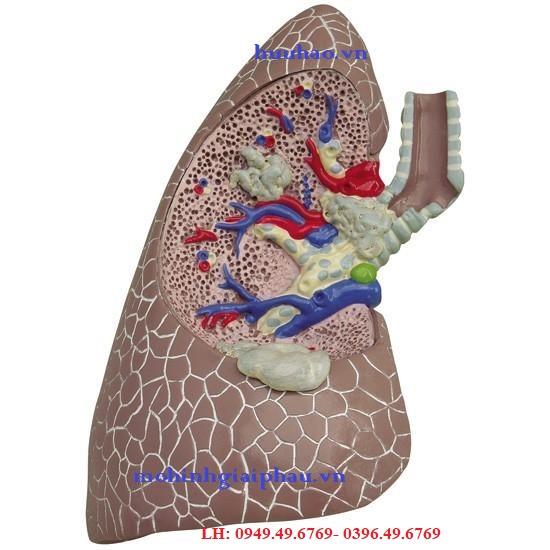 Mô hình bệnh lý về phổi