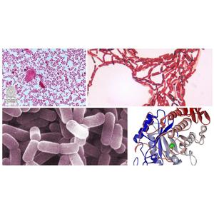 Vi sinh xử lý đáy ao, kích thích tiêu hóa tôm cá HPDON-BIO II