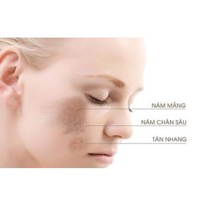 Cách nhận biết về da bị nám tàn nhang và hướng điều trị nám tàn nhang