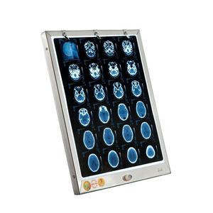 Đèn đọc 1 film X-Quang, CT, MRI
