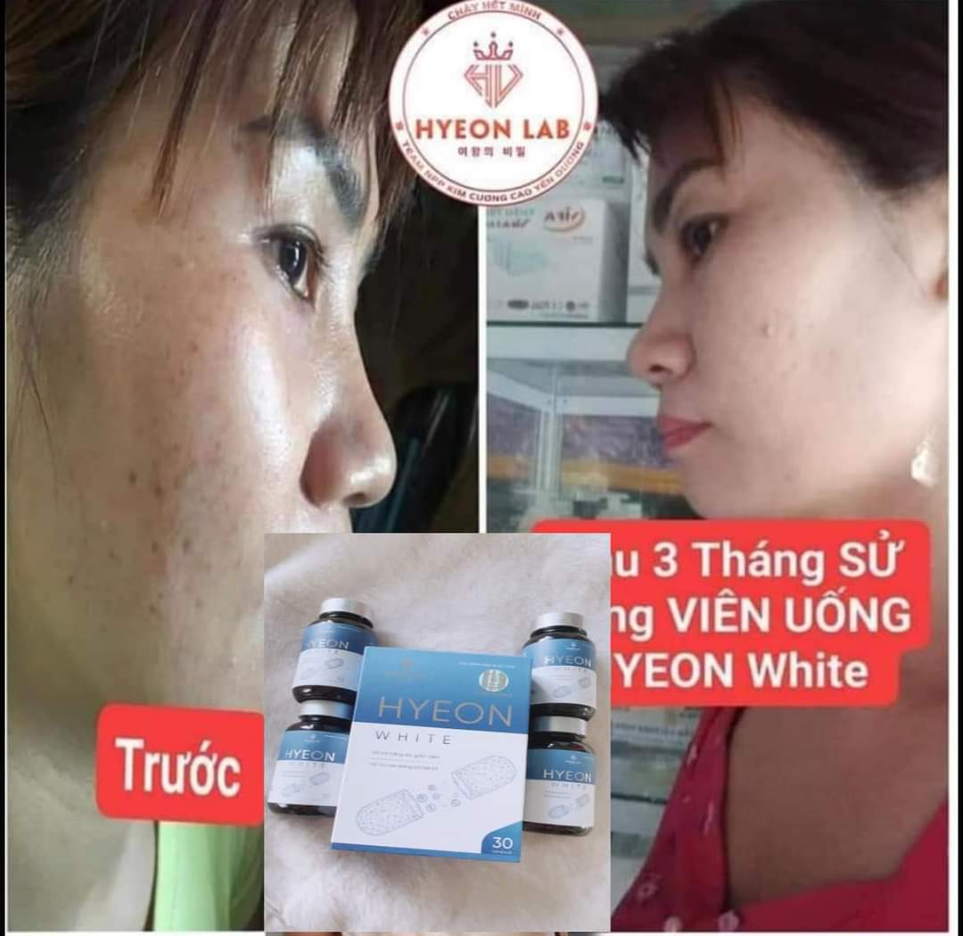 Viên uống trắng da Hyeon white