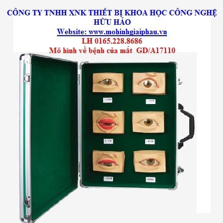 Mô hình bệnh của mắt GD/A17110
