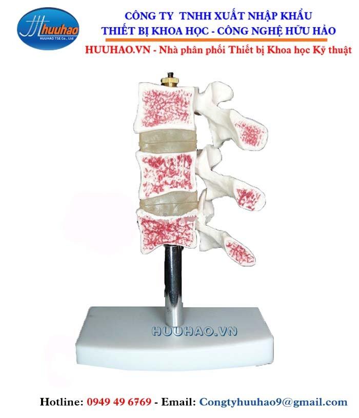 Mô hình bổ dọc chứng loãng xương