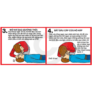 Kỹ Thuật Hồi Sinh Tim Phổi (CPR) là gì?