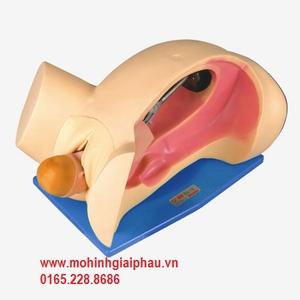 Mô hình bóc rau (nhau) thai và soát tử cung HHF6