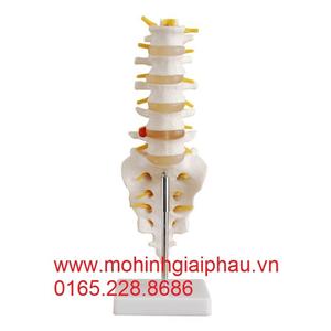 Mô hình đốt sống thắt lưng với xương cùng, xương cụt và thoát vị đĩa đệm