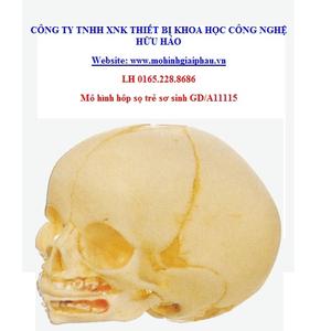 Mô hình giải phẫu hộp sọ trẻ sơ sinh