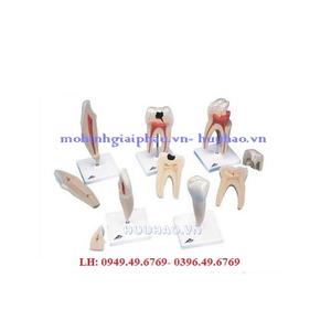 Mô hình 5 loại răng