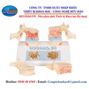 Mô hình bệnh loãng xương