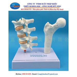 Mô hình bệnh lý loãng xương