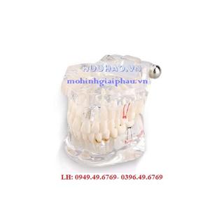 Mô hình bệnh lý răng người
