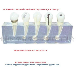 Mô hình bệnh lý tủy răng