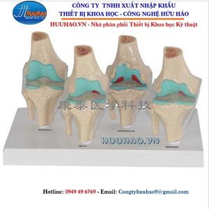 Mô hình bệnh lý xương khớp gối
