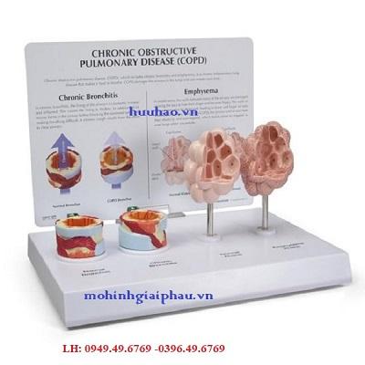 Mô hìnhbệnh phổi tắc nghẽn mãn tính (COPD)
