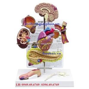 Mô hình biến chứng tiểu đường giai đoạn 2