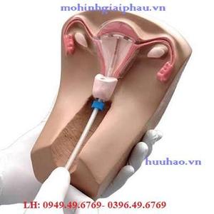 Mô hình đặt dụng cụ tử cung