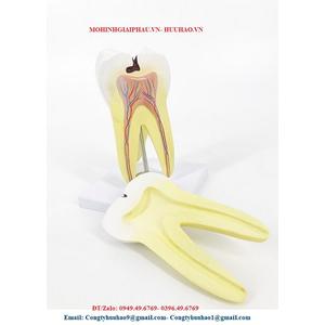 Mô hình giải phẫu răng hàm