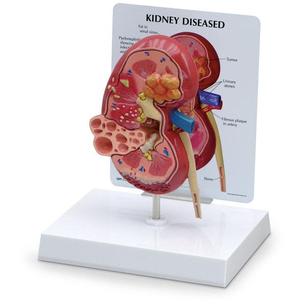 Mô hình giải phẫu thận với các bệnh lý thường gặp