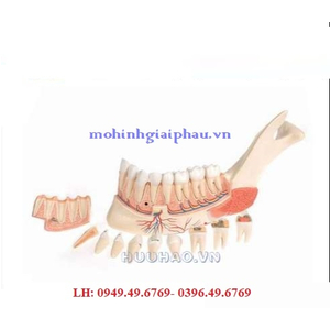 Mô hình hàm dưới và bệnh lý của răng