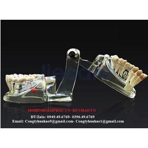 Mô hình hàm răng 3D trong suốt