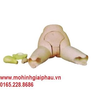 Mô hình khám và đánh giá đáy tử cung HHF31