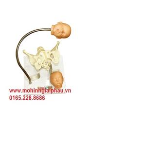 Mô hình khám xương chậu và đầu thai nhi HHF23