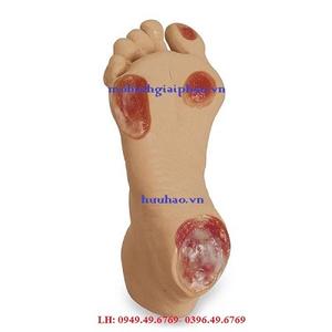 Mô hình loét chân người cao tuổi