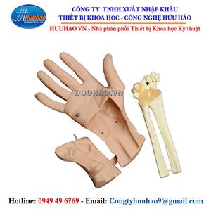 Mô hình nội soi khớp cổ tay