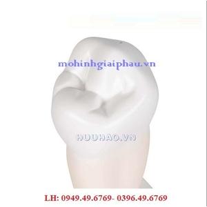 Mô Hình Răng 1 Chân