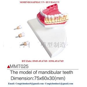 Mô hình răng hàm dưới