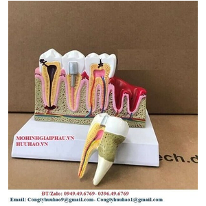 Mô hình răng nội nha