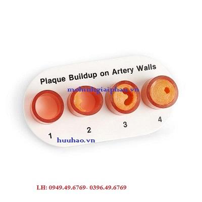 Mô hình tắc nghẽn động mạch