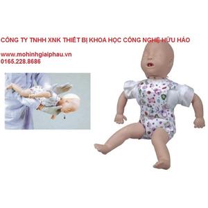 Mô hình sơ cứu hóc dị vật trên trẻ em