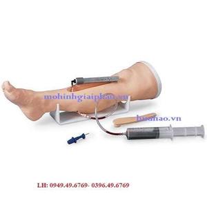 Mô hình truyền dịch trong xương chân
