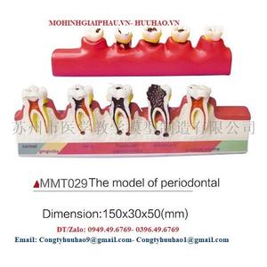 Mô hình viêm nha chu, bệnh viêm nhiễm răng