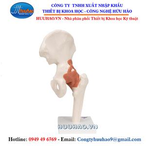 Mô hình xương khớp hông