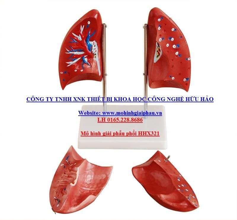 Mô hình giải phẫu phổi