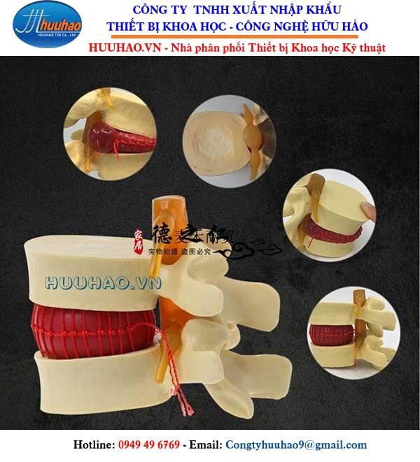 Mô hình bệnh lý thoát vị đĩa đệm